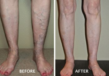 Endovenous Laser Ablation Therapy: An Advanced Treatment for Varicose Veins