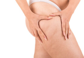 Advantages of Liposuction - Great Things You Can Achieve